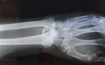 X-Ray picture of human wrist